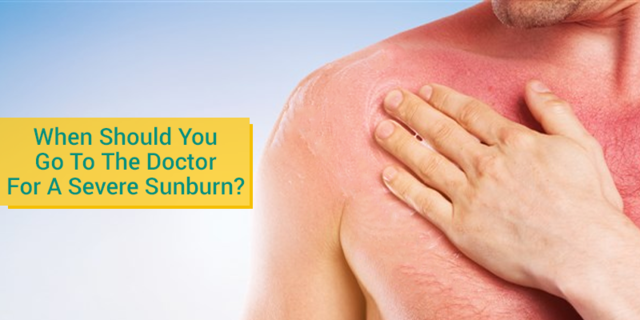 When Should You Go To Urgent Care Clinic For A Severe Sunburn Los Gatos Doc Primary Care Family Practice